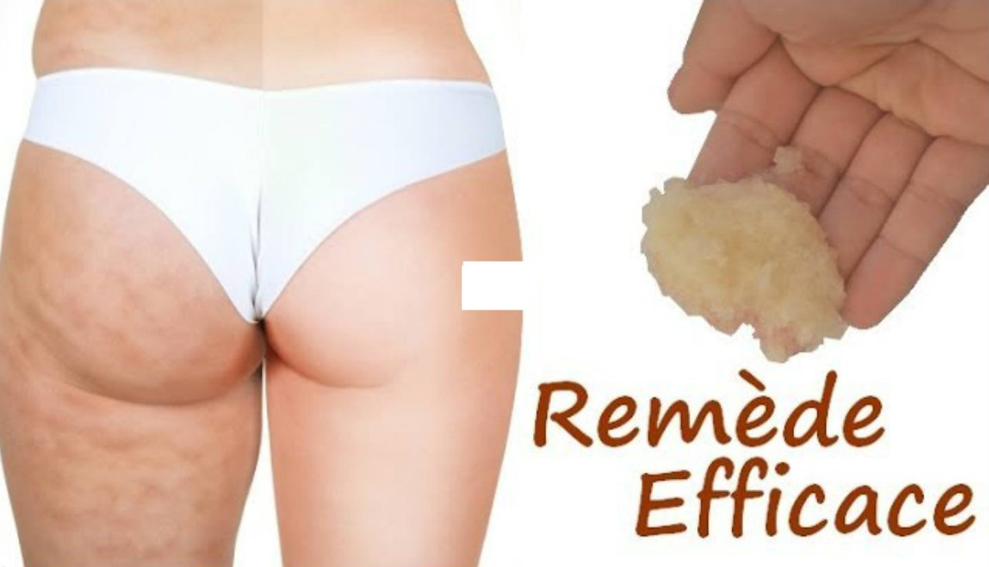Comment se d barrasser de la cellulite astuces de grand m re - Comment se debarrasser des limaces ...