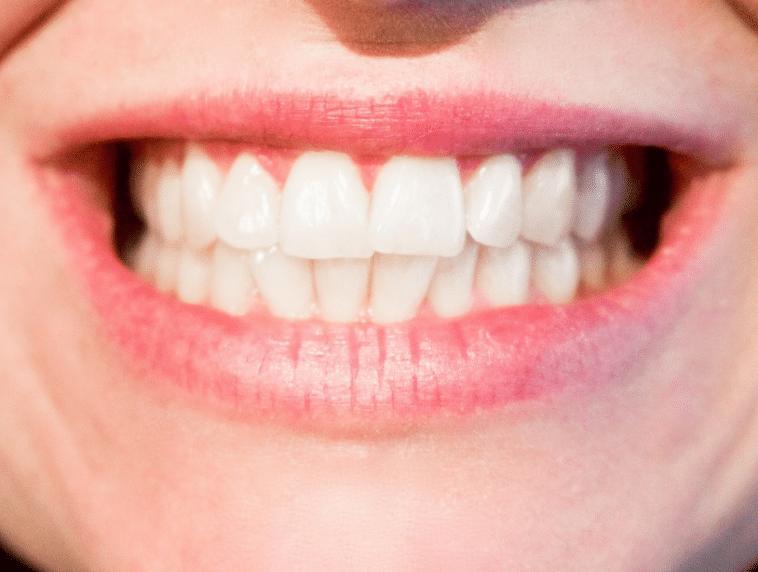 remède maux de dents