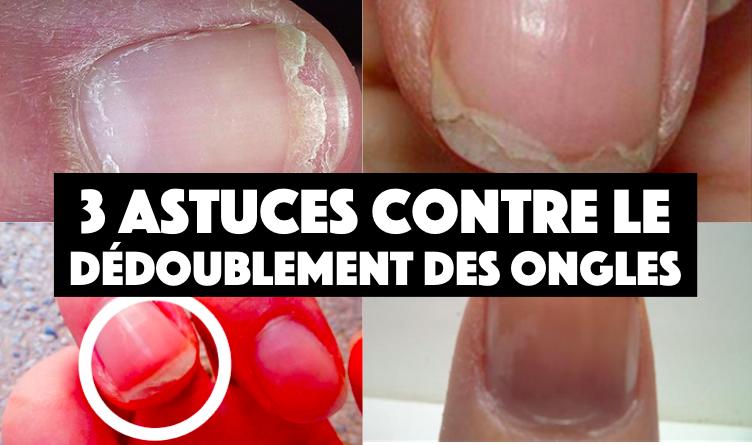 3 astuces pour lutter contre le d doublement des ongles astuces de grand m re - Coupe des ongles de pieds ...