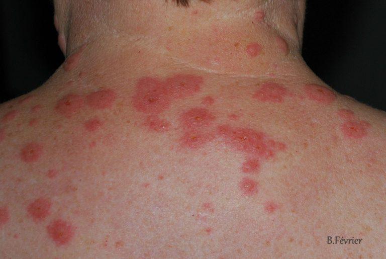 Le rem de contre les allergies de la peau astuces de grand m re - Bouton apres coup de soleil ...