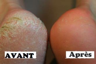 La déformation des ongles de la raison le traitement