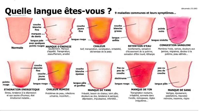 maux de gorge langue blanche