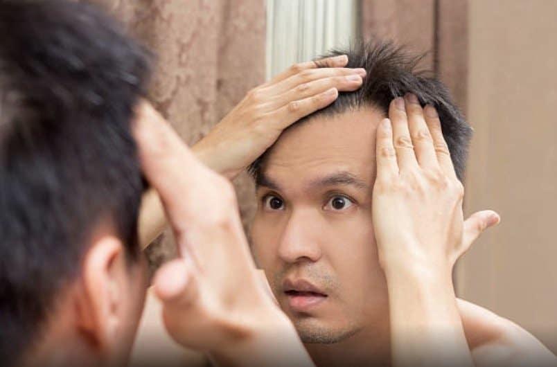 acne cheveux problème perte cheveux