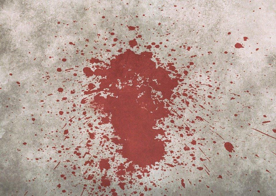 Comment enlever une tache de sang sur un v tement - Astuce pour enlever tache de sang ...