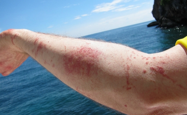 Relief-from-Jellyfish-Sting