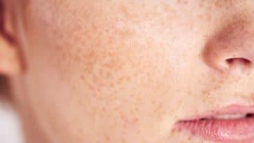 peau taches de rousseur pores dilatés
