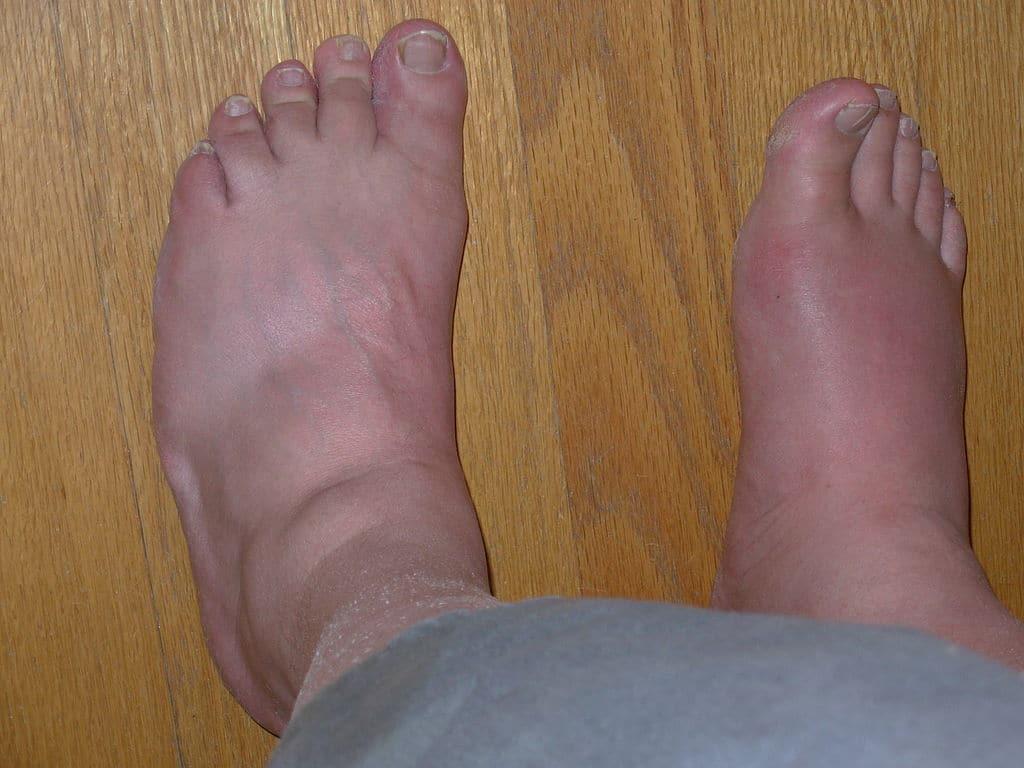 pieds gonfles chaleur remede