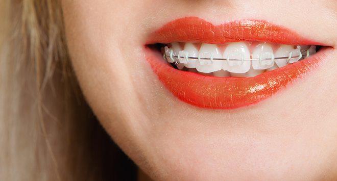 5 conseils pour blanchir vos dents si vous portez des. Black Bedroom Furniture Sets. Home Design Ideas