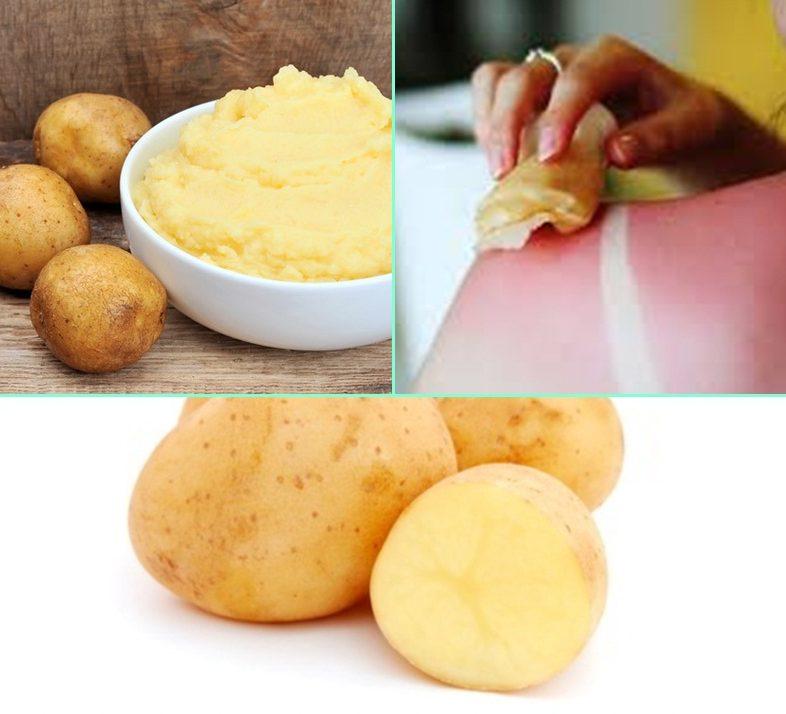 Apaisez vos coups de soleil avec une pomme de terre astuces de grand m re - Pomme de terre coup de soleil ...
