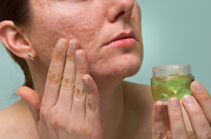 cicatrices d'acné boutons remèdes tels que aloe vera
