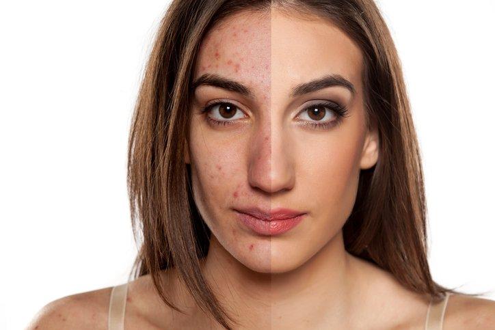 acné avant après peau