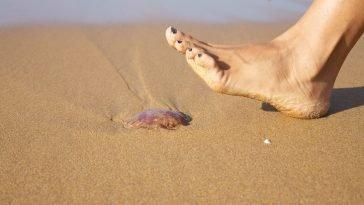piqûre de méduse plage
