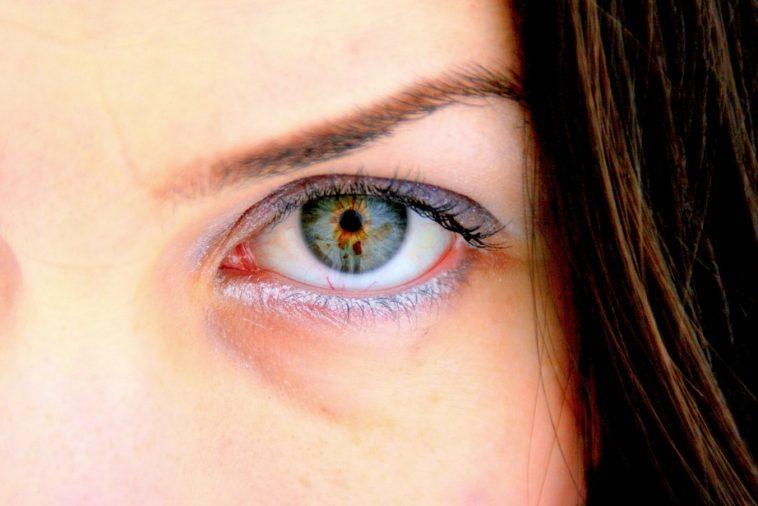 4 rem des naturels pour traiter les infections oculaires astuces de grand m re. Black Bedroom Furniture Sets. Home Design Ideas