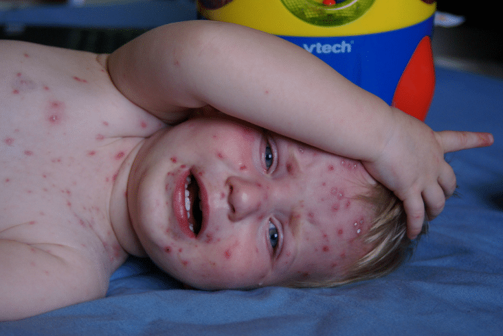 Bed Bug Vaccine