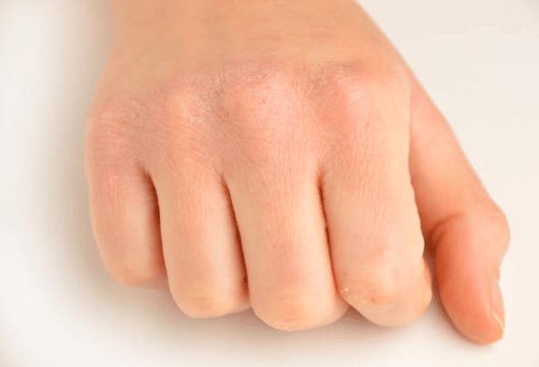 main sèche peau sèche