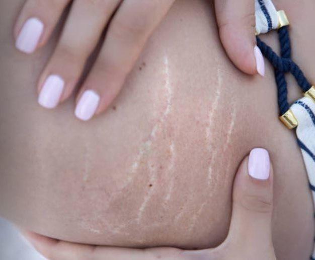 vergetures grossesse poids