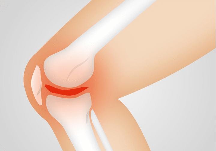 arthrose articulation genou remèdes naturels