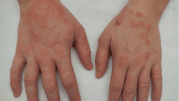 Que faire ? Eczema - Guide
