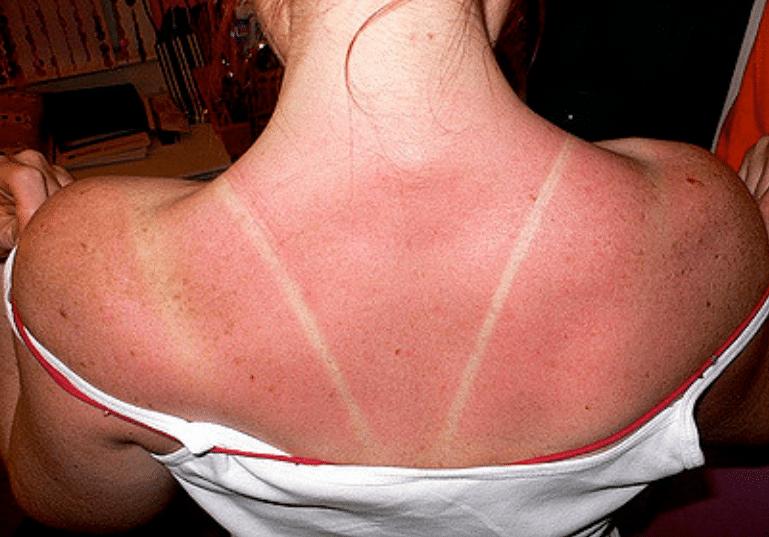 Coup de soleil 7 rem des basiques vraiment efficaces astuces de grand m re - Remede contre coup de soleil ...