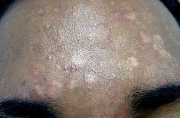 Pityriasis : 6 solutions naturelles contre ces taches blanches sur la peau