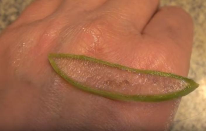 Appliquer de l'aloe vera sur une brûlure légère