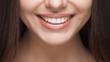 belles dents saines