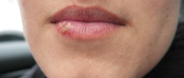 bouton de fièvre lèvres herpès labial