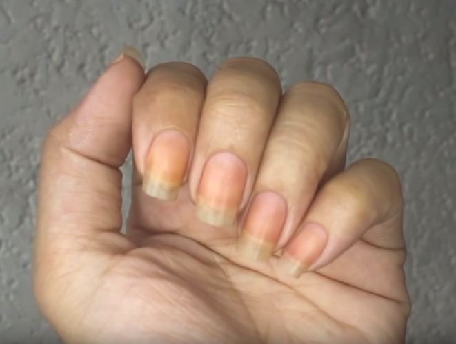 ongles jaunes à cause du vernis
