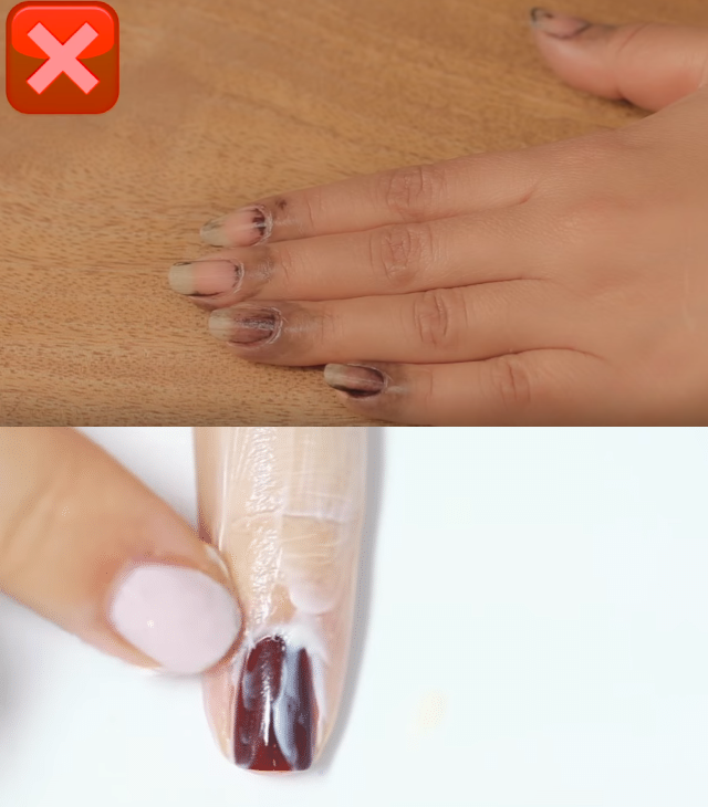 vernis foncé tache la peau