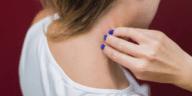 peau allergie démangeaison rougeur gratter