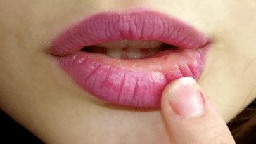 lèvres gercées sèches abîmées