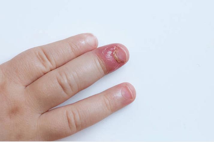 Panaris : 7 remèdes naturels pour le soigner et le soulager