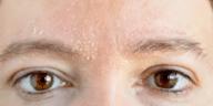 peau qui pèle pelure squames desquamation