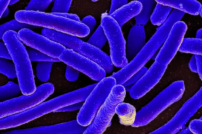 bactérie E.coli une de celles retrouvées sur des torchons sales