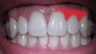 gencive irritée inflammation douleur dent