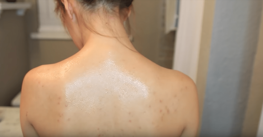 boutons dans le dos acné dorsale