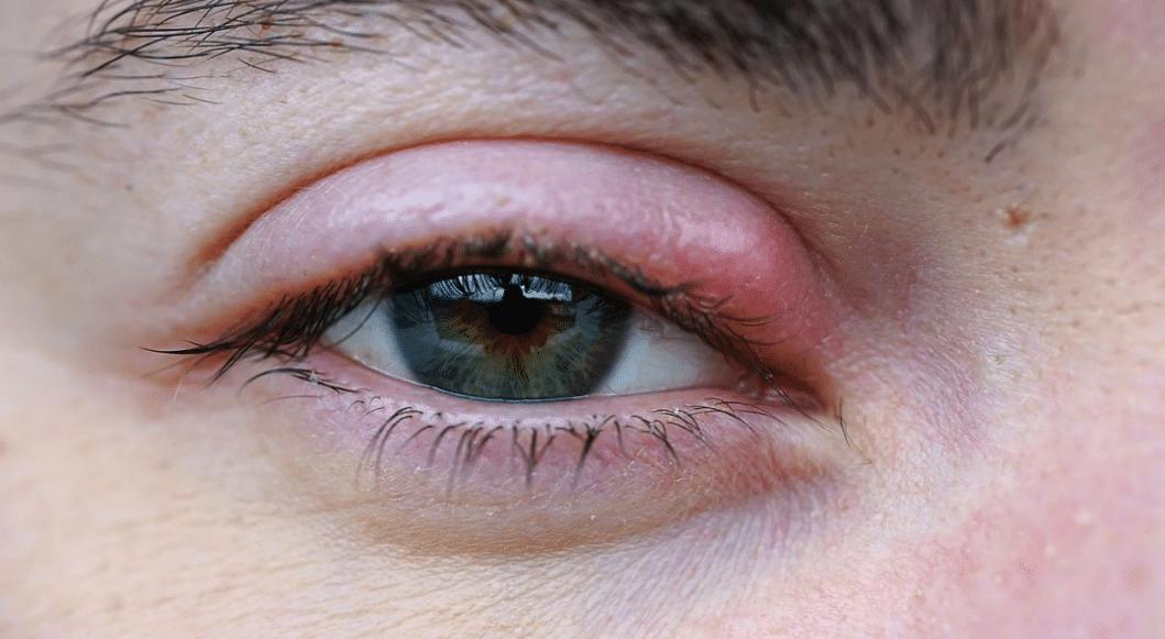 orgelet compère loriot infection bactérienne oeil rouge gonflé