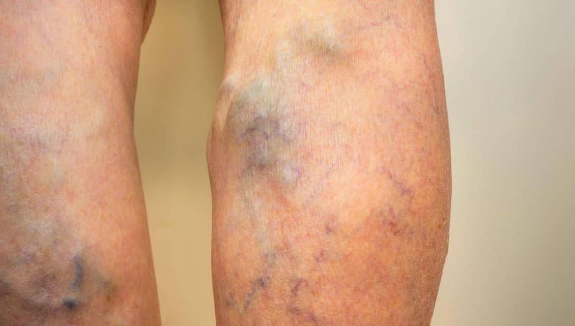 varices gonflement veines