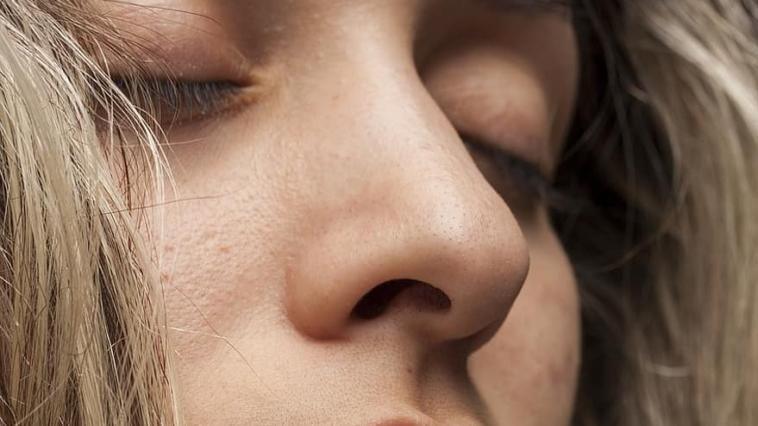 visage femme pores dilatés