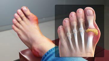crise de goutte pied