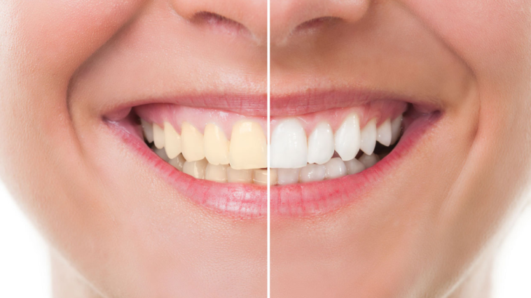 blanchiment dents plus blanches blanchir