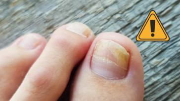 onychomycose mycose de l'ongle