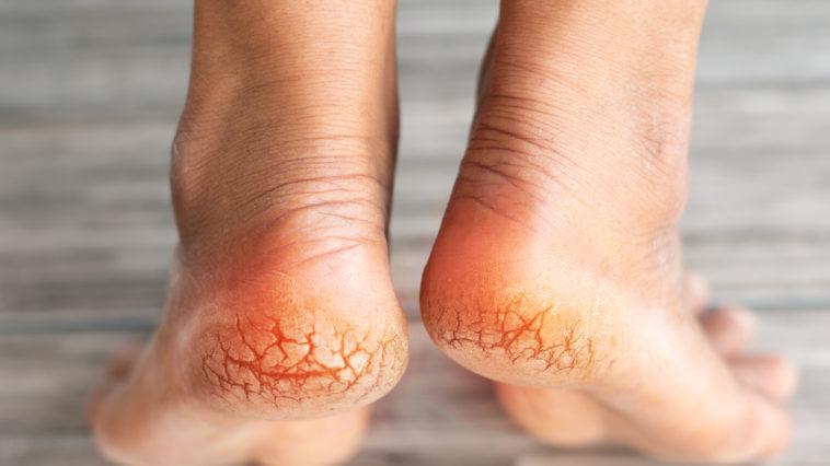 talons fendillés pieds secs crevasses fissures