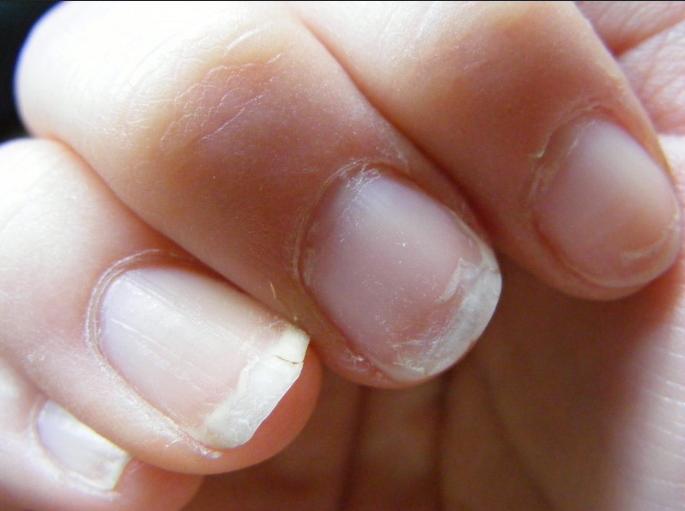 ongles secs dédoublement casse santé