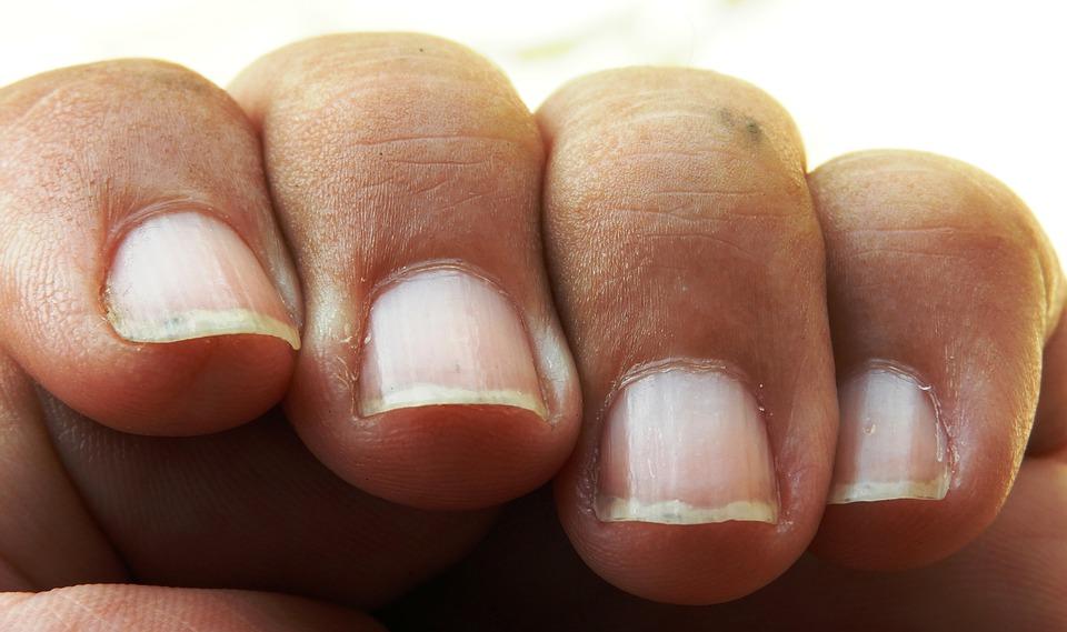 ongles striés stries ongle santé