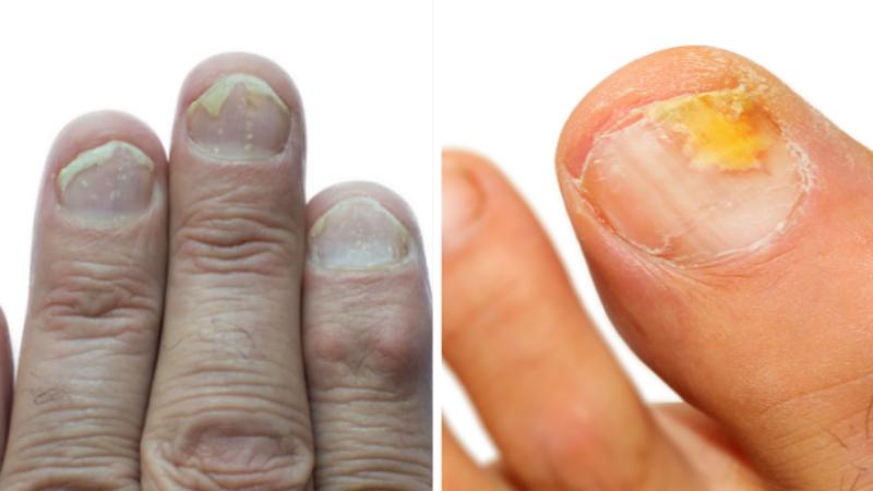 psoriasis et mycose des ongles