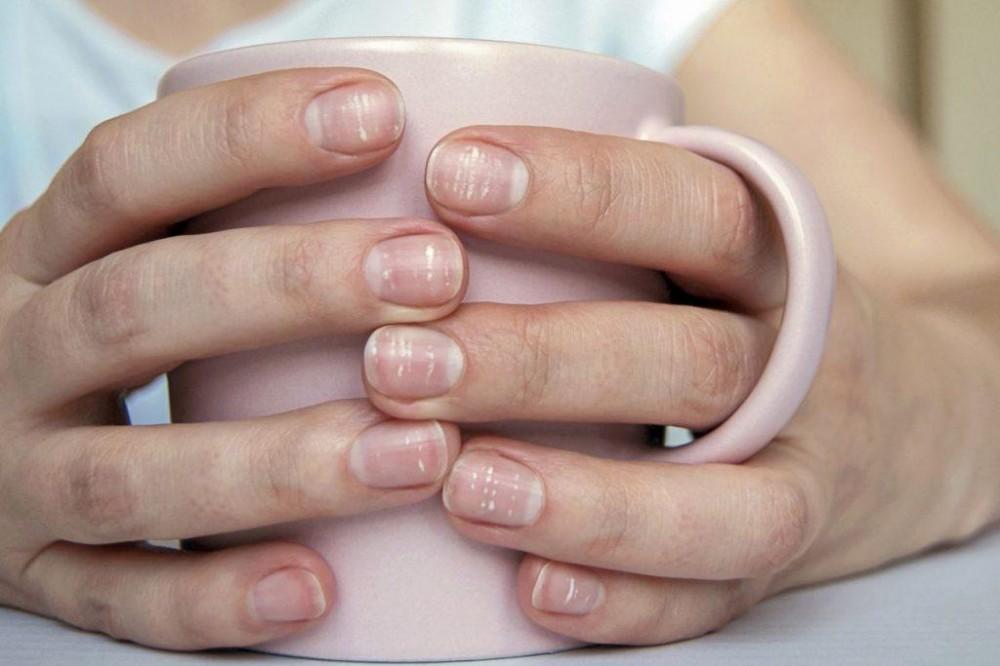 taches blanches sur les ongles santé calcium
