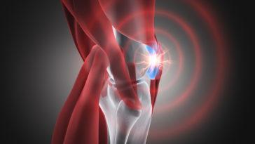 douleurs genou arthrite arthrose